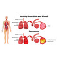 healthy and unhealthy human lungs vector image