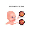 pyoderma in child vector image