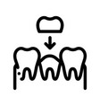 stomatology tooth crown thin line sign icon vector image vector image