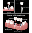 Dental procedures on black vector image