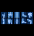 x-ray bones x-rays examination human joint vector image