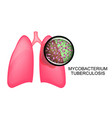 lungs of tb patients koha vector image vector image