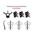 traumatology and orthopedics the spine vertebra vector image vector image