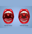 infected tonsils inflammation concept vector image