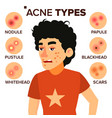 acne types boy with acne pimples vector image