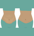fat and slim girls bellies before and after vector image vector image
