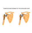 types of prosthesis of shoulder vector image vector image