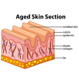 Aged skin section diagram vector image vector image