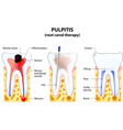 Pulpitis root canal therapy vector image vector image