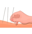 acupuncture hand and needle for acupuncture vector image