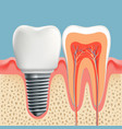 human tooth in cross-section and dental implant vector image