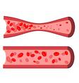 Bloody artery Blockage of blood vessels Sick vector image