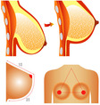 Plastic surgery of breast vector image