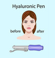 hyaluronic pens on light background isolated vector image vector image