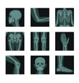 skeleton and bones x-ray shots head and hands vector image