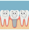 human teeth and dental implant vector image vector image