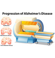 Progression of Alzheimers Disease vector image
