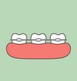 orthodontic teeth or dental braces vector image vector image