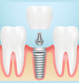 realistic healthy teeth and dental implant vector image