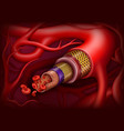 artery structure medical concept vector image vector image