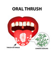 oral thrush candidiasis on the tongue fungus in vector image