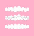 the stages of orthodontic vector image