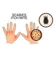 infection of scabies itch mite vector image vector image