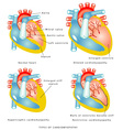Diseases of the Heart Muscle vector image vector image
